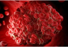blood-clots-and-coronavirus